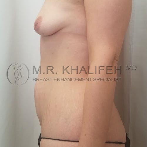 Mommy Makeover Gallery - Patient 3763050 - Image 7