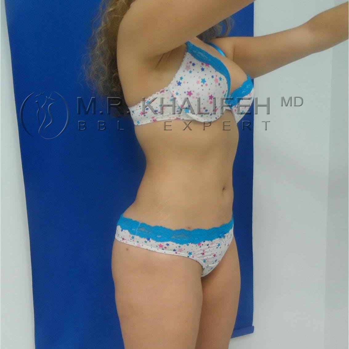 Brazilian Buttock Lift Gallery - Patient 3763051 - Image 8
