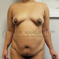 Mommy Makeover Gallery - Patient 3763111 - Image 1