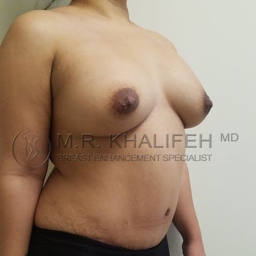 Mommy Makeover Gallery - Patient 3763111 - Image 6
