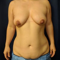 Mommy Makeover Gallery - Patient 3763156 - Image 1