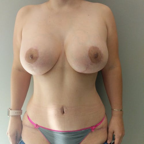 Mommy Makeover Gallery - Patient 3763156 - Image 2