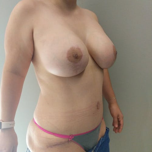 Mommy Makeover Gallery - Patient 3763156 - Image 4
