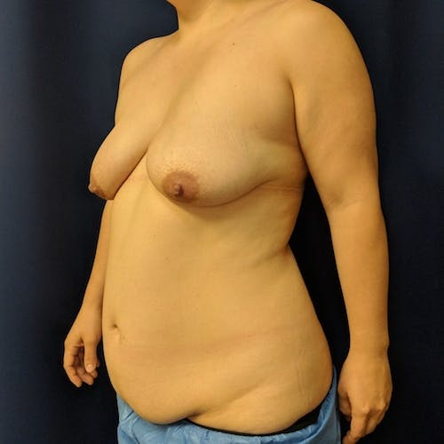 Mommy Makeover Gallery - Patient 3763156 - Image 5