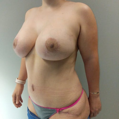 Mommy Makeover Gallery - Patient 3763156 - Image 6