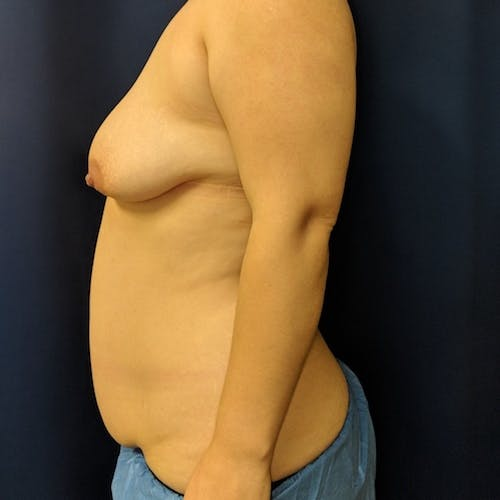 Mommy Makeover Gallery - Patient 3763156 - Image 7
