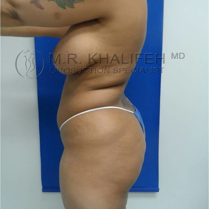 Brazilian Buttock Lift Gallery - Patient 3763172 - Image 3