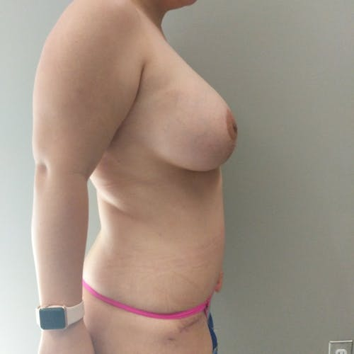 Mommy Makeover Gallery - Patient 3763156 - Image 10