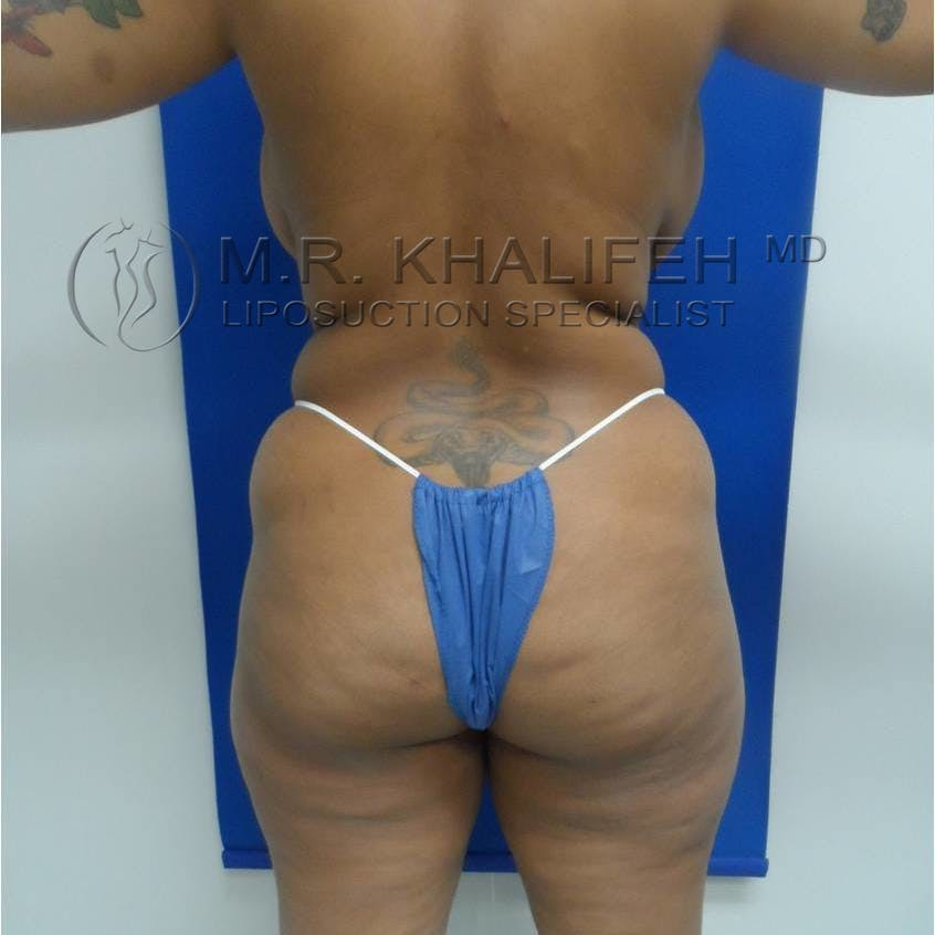 Brazilian Buttock Lift Gallery - Patient 3763172 - Image 7