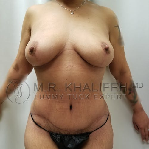 Mommy Makeover Gallery - Patient 3763198 - Image 2