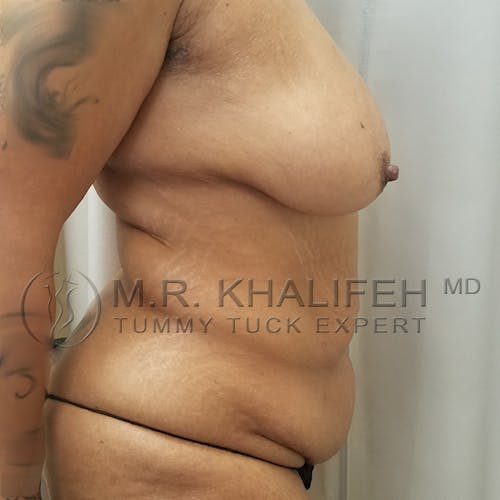 Mommy Makeover Gallery - Patient 3763198 - Image 3