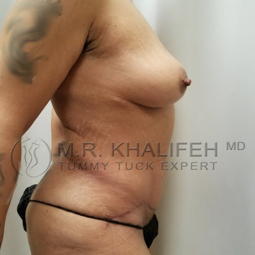 Mommy Makeover Gallery - Patient 3763198 - Image 4