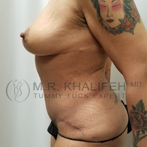 Mommy Makeover Gallery - Patient 3763198 - Image 6