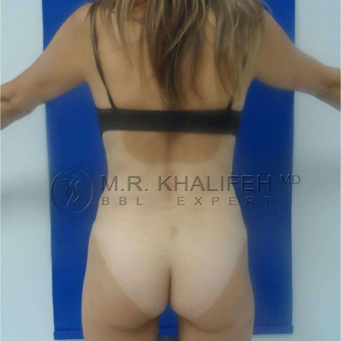 Brazilian Buttock Lift Gallery - Patient 3763239 - Image 4