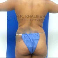Brazilian Buttock Lift Gallery - Patient 3763294 - Image 1
