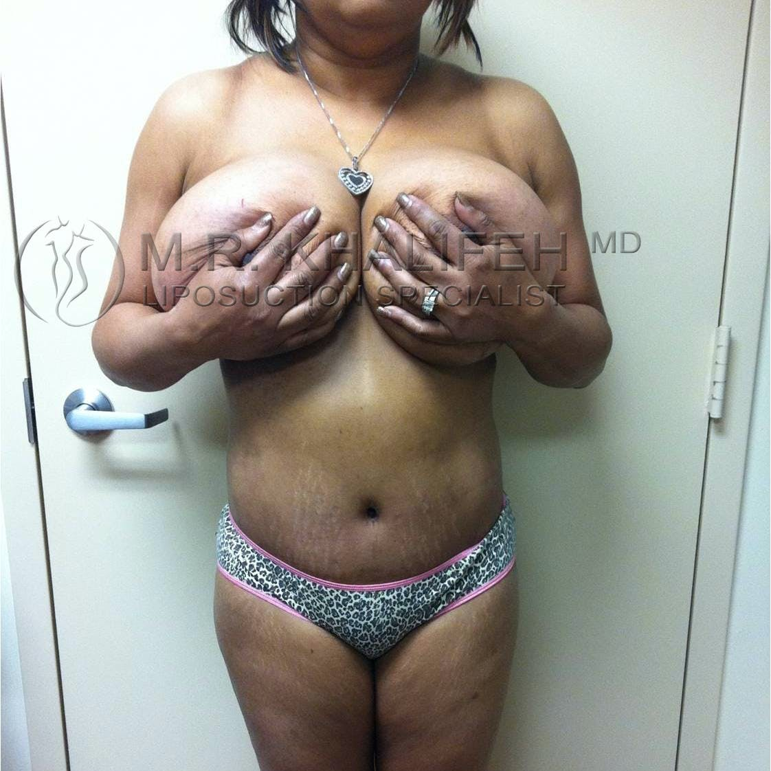 Brazilian Buttock Lift Gallery - Patient 3763503 - Image 6