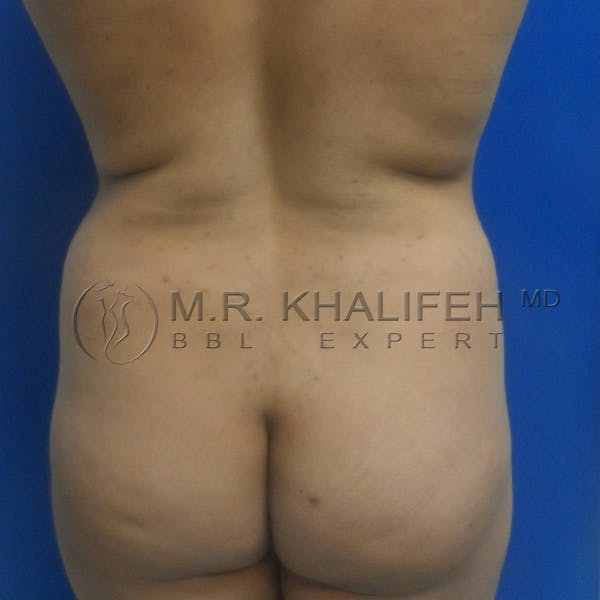 Brazilian Buttock Lift Gallery - Patient 3763632 - Image 3