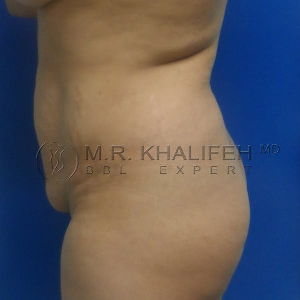 Brazilian Buttock Lift Gallery - Patient 3763632 - Image 7