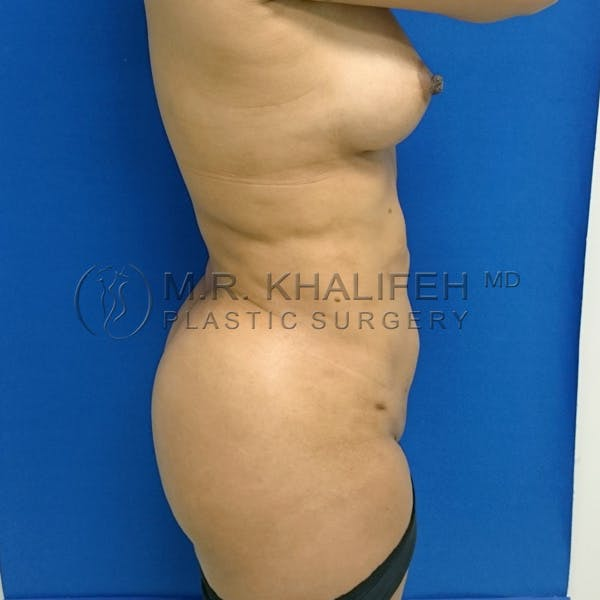 Brazilian Buttock Lift Gallery - Patient 3763920 - Image 6