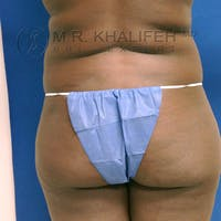 Brazilian Buttock Lift Gallery - Patient 3763941 - Image 1