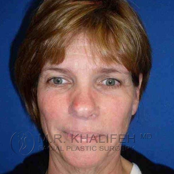 Facelift Gallery - Patient 3764019 - Image 1