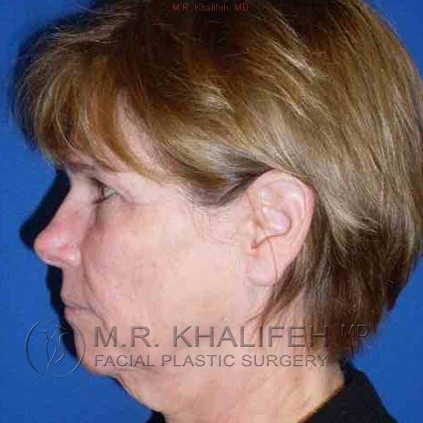 Facelift Gallery - Patient 3764019 - Image 5
