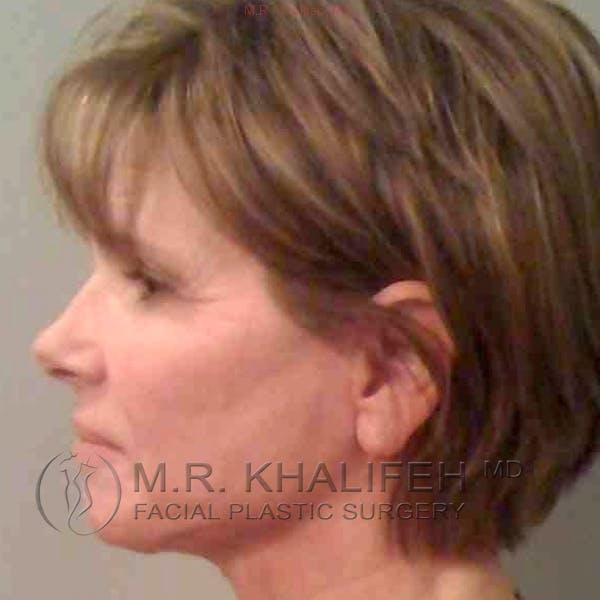 Facelift Gallery - Patient 3764019 - Image 6