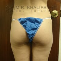 Brazilian Buttock Lift Gallery - Patient 3764051 - Image 1