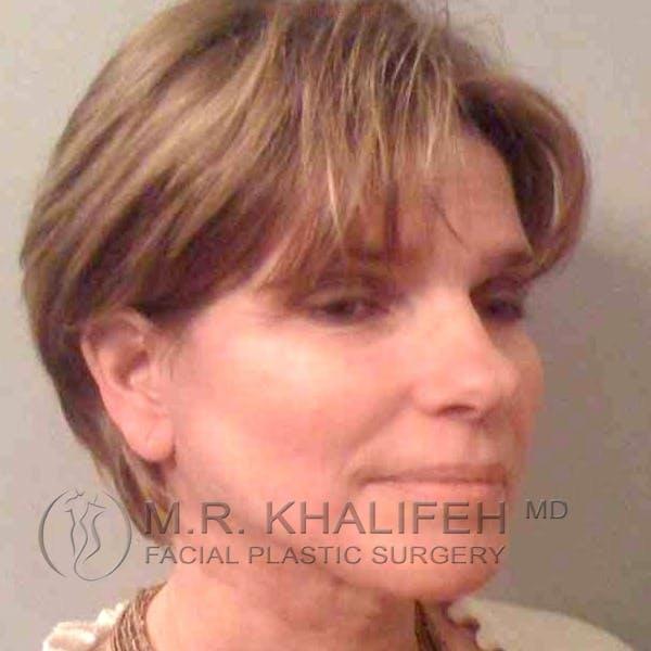 Facelift Gallery - Patient 3764019 - Image 8