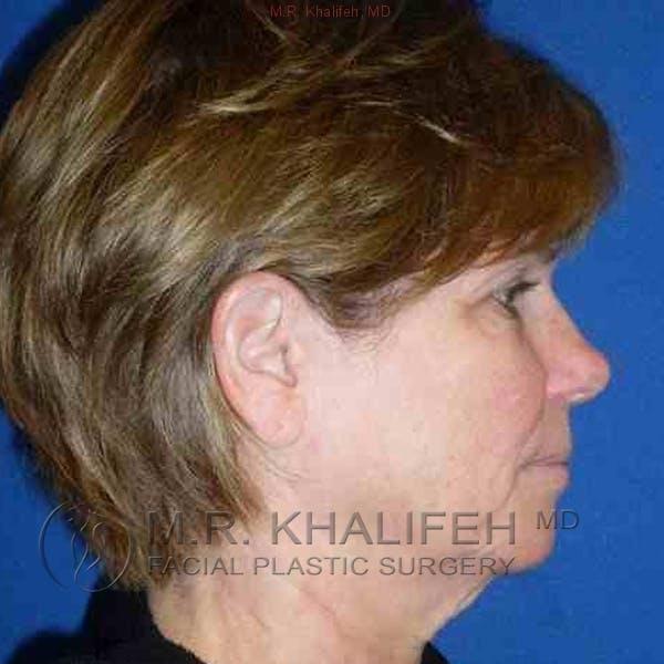 Facelift Gallery - Patient 3764019 - Image 9