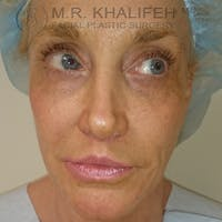 Facelift Gallery - Patient 3764096 - Image 1