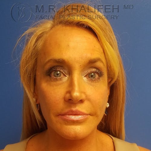 Facelift Gallery - Patient 3764096 - Image 2