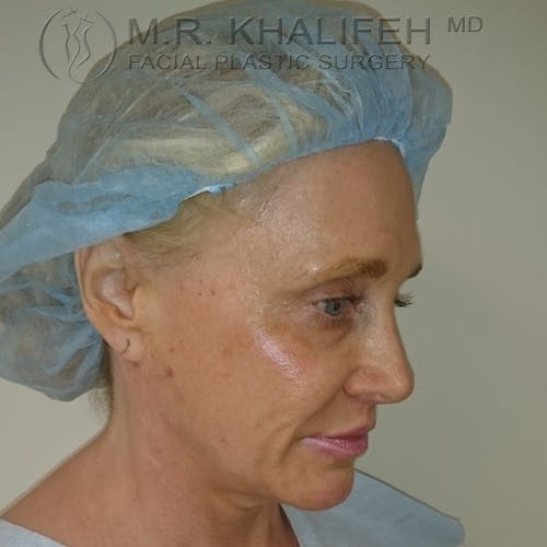 Facelift Gallery - Patient 3764096 - Image 3