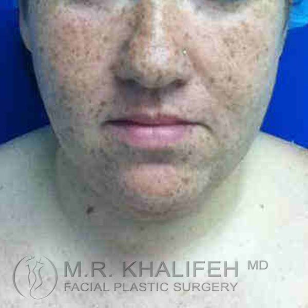 Chin & Neck Liposuction Gallery - Patient 3764052 - Image 5