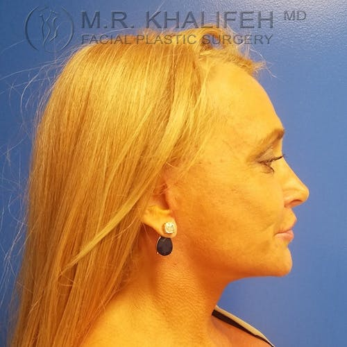Facelift Gallery - Patient 3764096 - Image 4