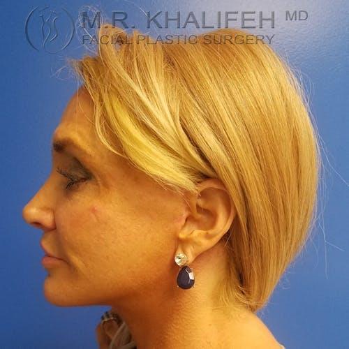 Facelift Gallery - Patient 3764096 - Image 6