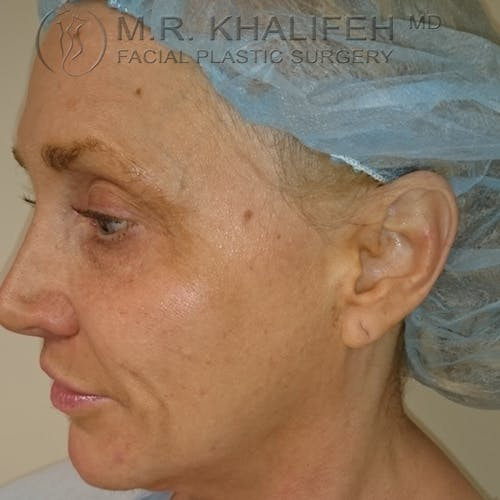 Facelift Gallery - Patient 3764096 - Image 7