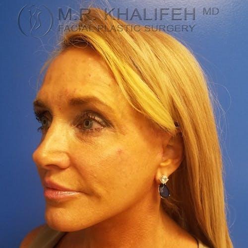 Facelift Gallery - Patient 3764096 - Image 8