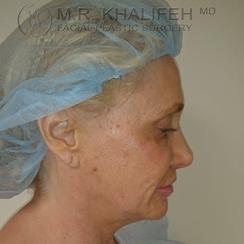 Facelift Gallery - Patient 3764096 - Image 9