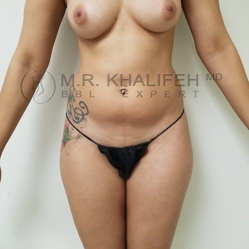 Brazilian Buttock Lift Gallery - Patient 3764118 - Image 5