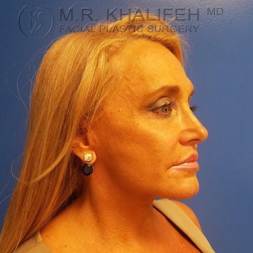 Facelift Gallery - Patient 3764096 - Image 10