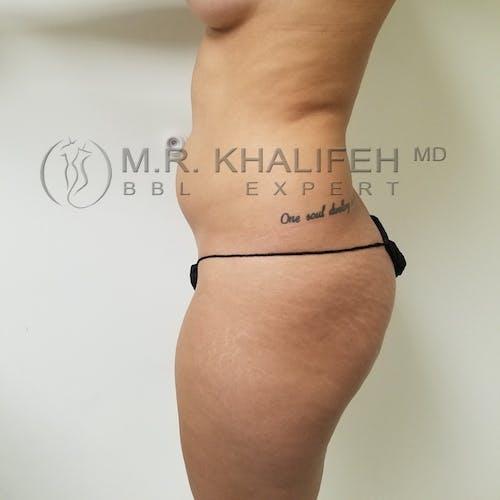Brazilian Buttock Lift Gallery - Patient 3764118 - Image 7