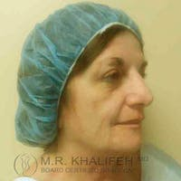 Facelift Gallery - Patient 3764169 - Image 1