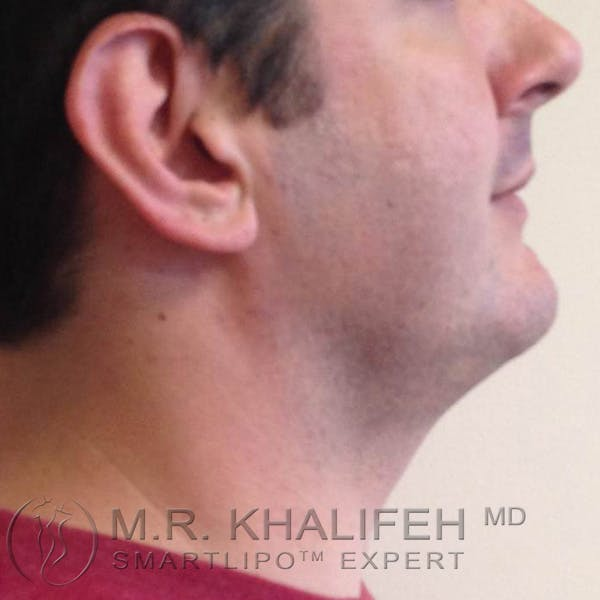 Chin & Neck Liposuction Gallery - Patient 3764129 - Image 2