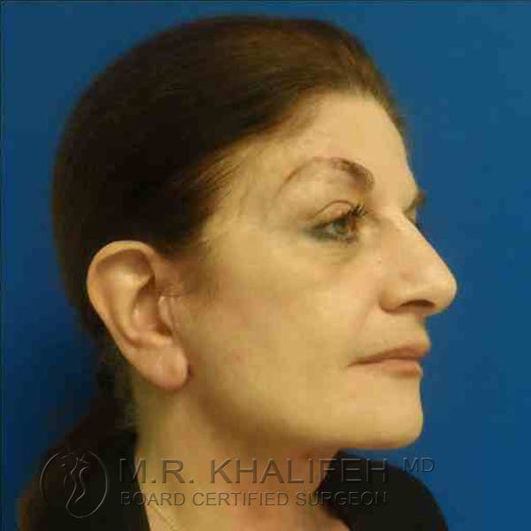 Facelift Gallery - Patient 3764169 - Image 2