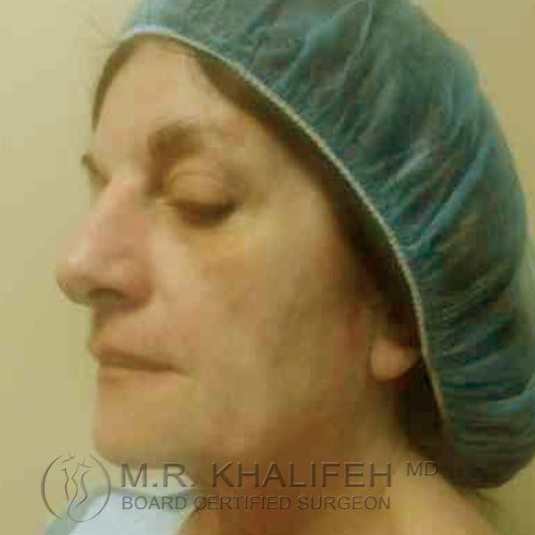 Facelift Gallery - Patient 3764169 - Image 3