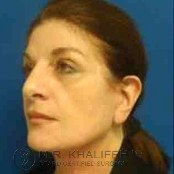 Facelift Gallery - Patient 3764169 - Image 4