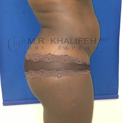 Brazilian Buttock Lift Gallery - Patient 3764148 - Image 5