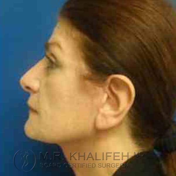 Facelift Gallery - Patient 3764169 - Image 6
