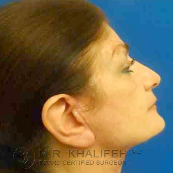 Facelift Gallery - Patient 3764169 - Image 8